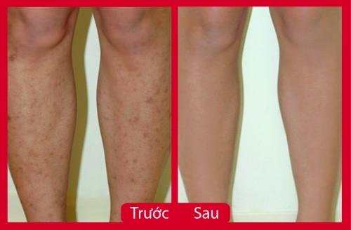 Xóa sẹo thâm ở chân lâu năm hiệu quả   xóa sẹo hiệu quả