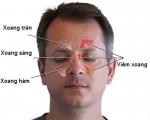Những triệu chứng phổ biến của viêm xoang trước